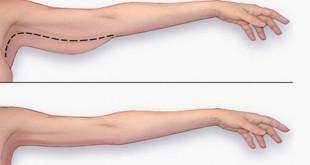 Alimentos dieta perder grasa piernas hicieron tambin