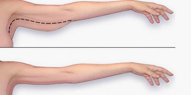 Consejos para eliminar la grasa de los brazos