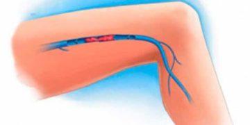 Remedios caseros para la mala circulación en las piernas