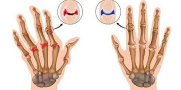 Remedio para las enfermedades de las articulaciones