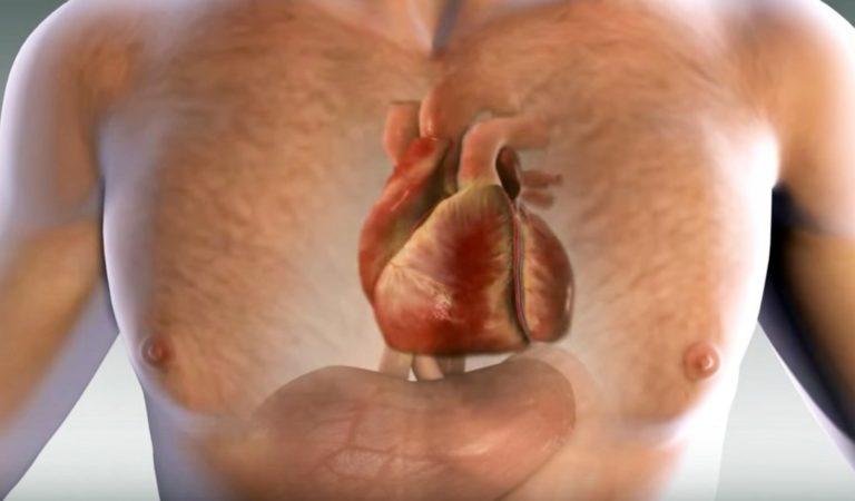 Un infarto te avisa un mes antes. El cuerpo te lo advierte por medio de estas 6 señales